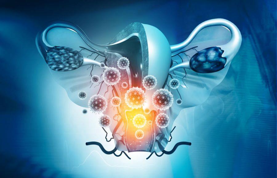 ¿Por qué el cáncer de ovario se propaga en respuesta a los tratamientos?