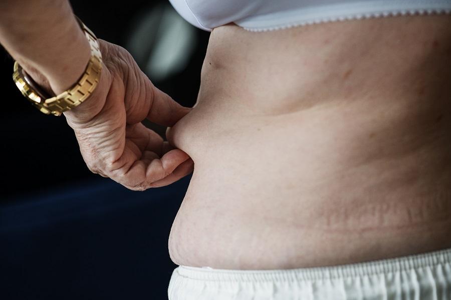 La importancia de prevenir y tratar la obesidad