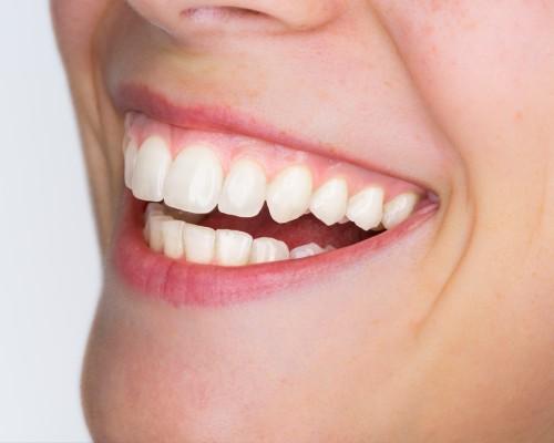 dientes-shutterstock-616331201