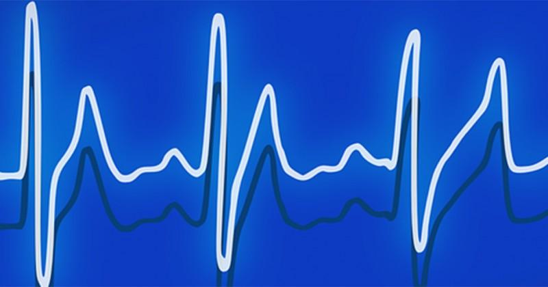 electrocardiograma-examen-salud-001