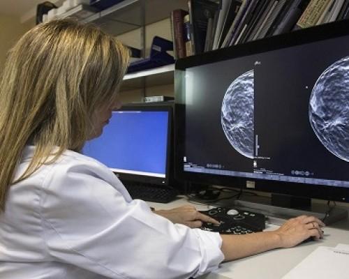 imagenologia-mamografia