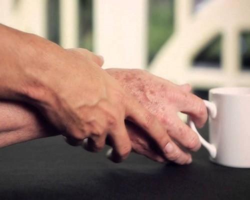 Reflexiones sobre la Enfermedad de Parkinson